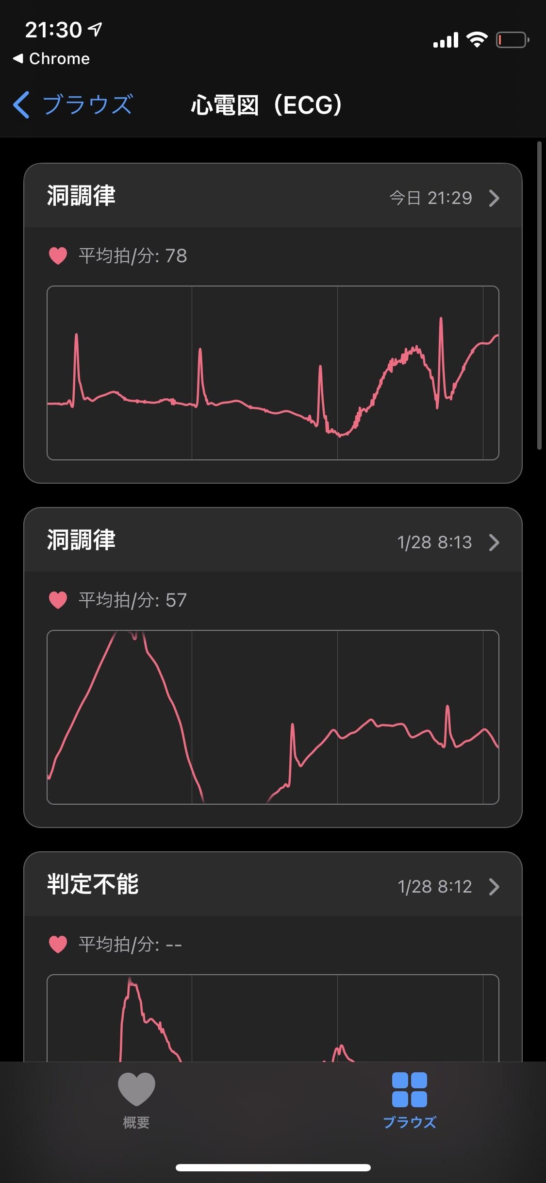 アップルウォッチの心電図アプリ